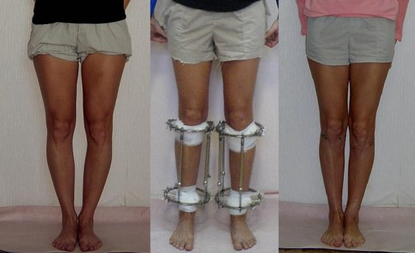 how-to-get-taller-with-surgery